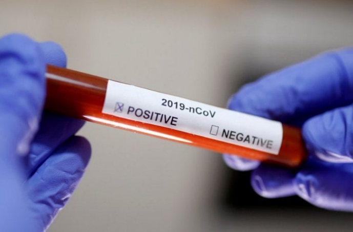 Koronavirusi në Kosovë, del bilanci i të infektuarve në 24 orët e fundit